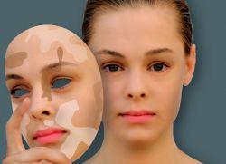 çocuklarda-vitiligo-tedavisi